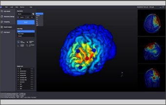 Alzheimer Disease Diagnose Software