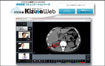 "Cloud version telemedicine system""Kizunaweb"""